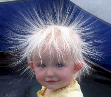 kid-with-static-hair.jpg